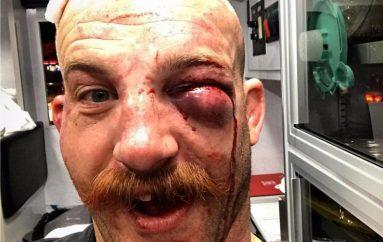 Cummins i kushton rëndë fitorja, dëmton syrin e majtë