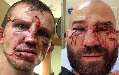 McGregor reagon pas fitores së Lobov dhe thumbon Paulie